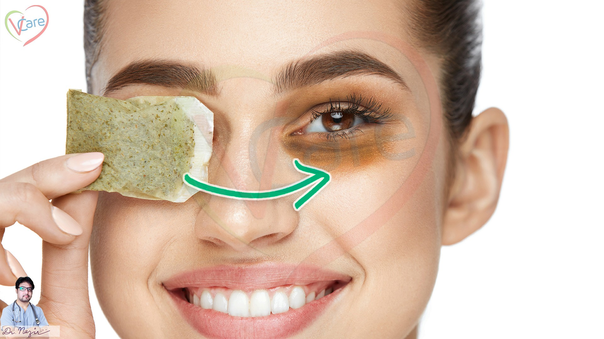 Dark circles under eyes treatment and Home remedies ...