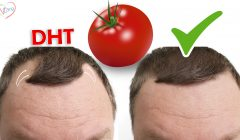 BALDNESS CURE BY 2020 – RCH-01 ALOPECIA TREATMENT - vCare